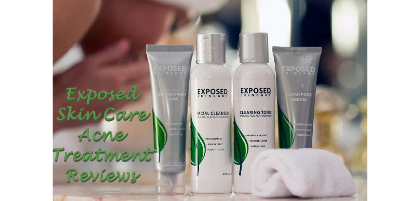 Exposed Skin Care Acne Treatment Reviews